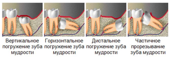 Рост зубов мудрости при дистопии