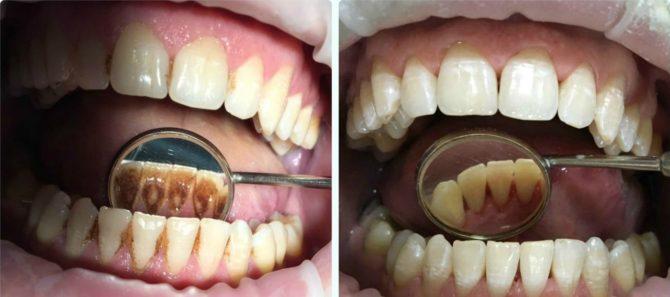 Так выглядят зубы до и после удаления зубного камня
