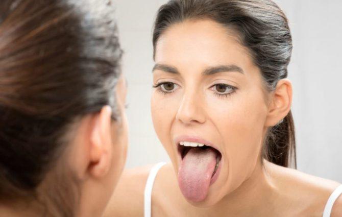 У женщины глоссит языка