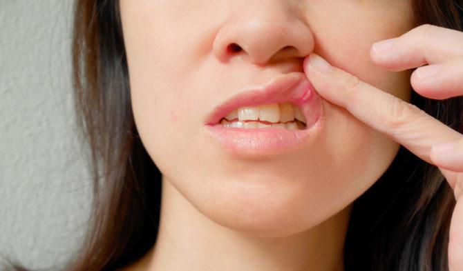 У женщины во рту стоматит