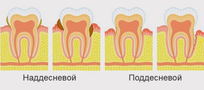 Виды зубного камня