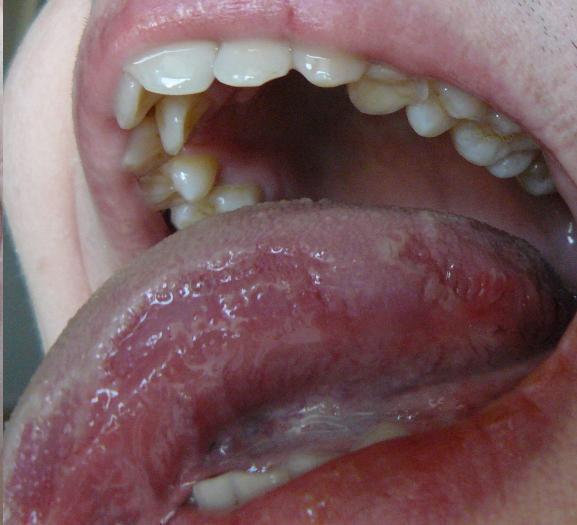 Жжение языка: причины, лечение, почему щиплет и печет кончик языка ...