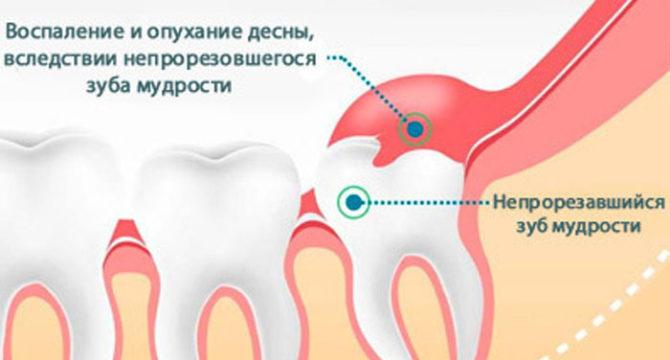 Воспаление и опухание десны из-за непрорезавшегося зуба мудрости