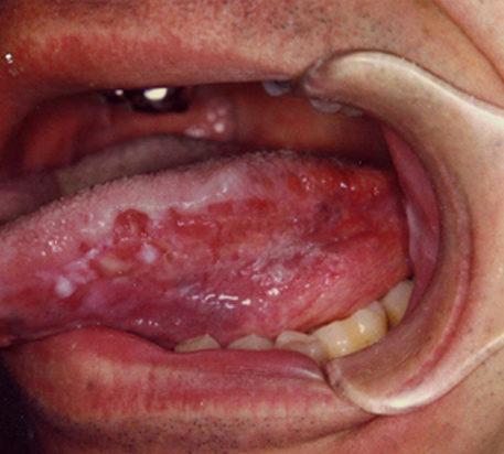 симптомы глоссита