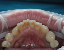 Зубной камень на зубах