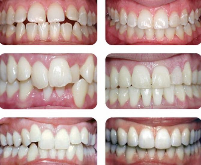 Зубы детей до и после установки пластин